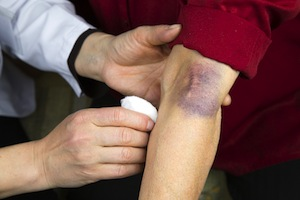 Large Bruise On Human Arm Dfw Wound Care Center