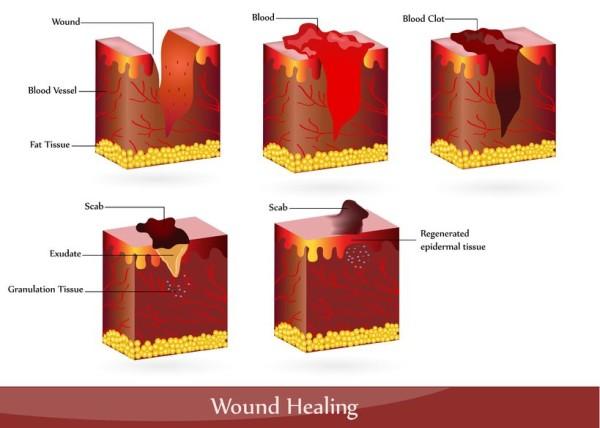 Wound healing process